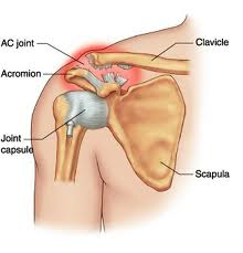 Acromion or AC Joint injury – to operate or not?