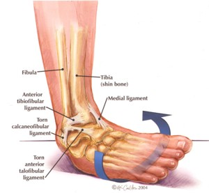 Ankle rehabilitation – to tape or not to tape when returning to play?