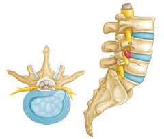 Slipped Disc –  is it really??
