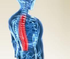 Mid Back Pain and Scheuermann's Disease