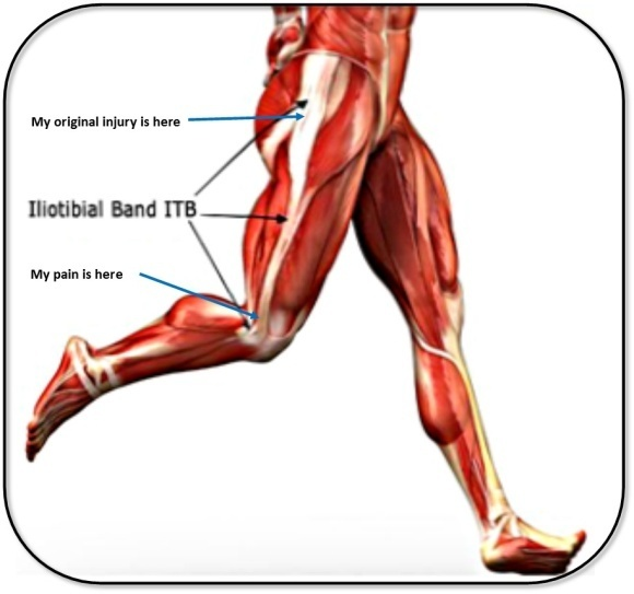 Iliotibial Band Friction Syndrome (ITBFS) – The Physio Approach