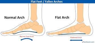 Flat or Flatter Feet