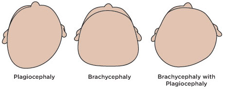 Plagiocephaly (aka Flat Head Syndrome)